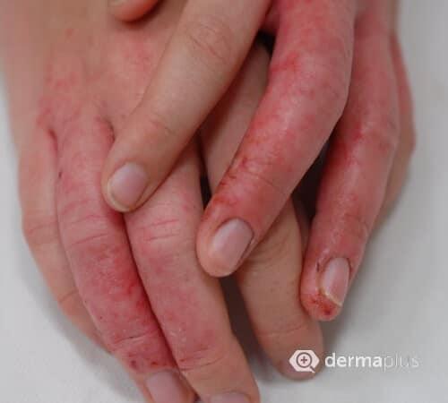 Finger ausschlag Hautausschlag am