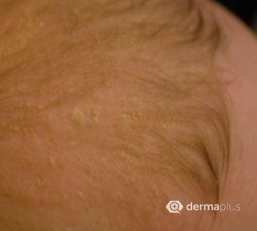 Seborrhoisches Ekzem Seborrhoische Dermatitis Dermaplus