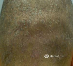 Kopfekzem seborrhoische dermatitis
