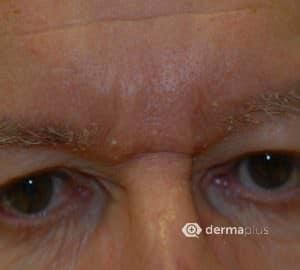 seborrhoische dermatitis im augenbereich