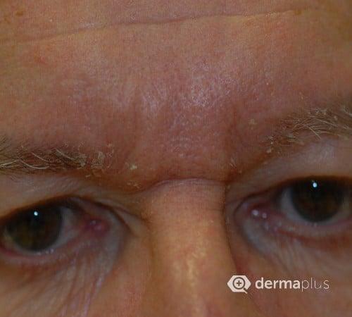 Haut augenbrauen trockene nase Schuppen an
