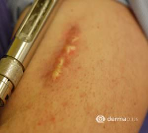 narben keloide cicatrix