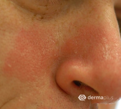 Trockene, rissige Haut am After, Juckreiz - Dermatologie