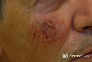 Behandlung aktinischer Keratosen Hautkrebs