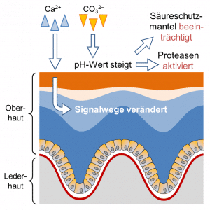 Wasserhärte beeinflusst Neurodermitis