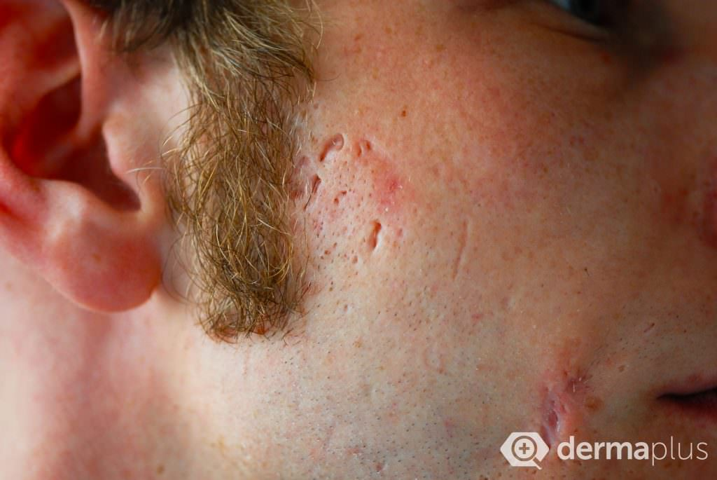 akne narben akne acne vulgaris komedonen