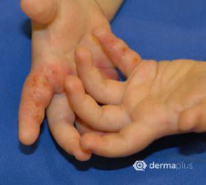 Handekzeme Dyshidrosiforme Handekzeme