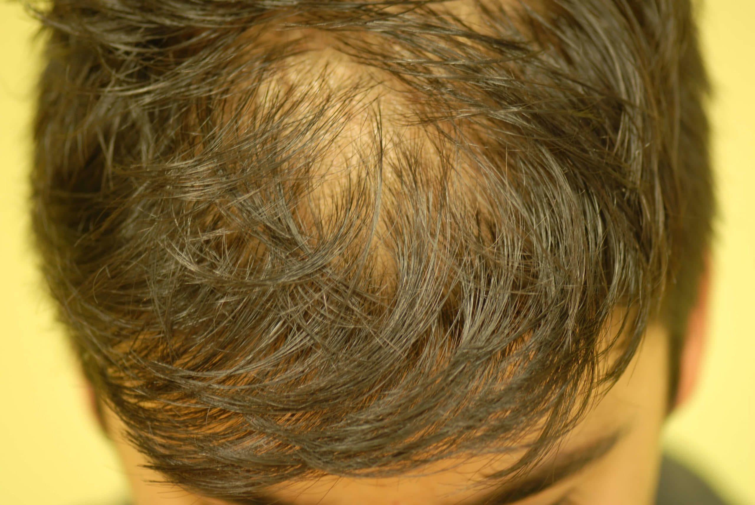 Haarausfall Androgenetische Alopezie Derma Plus