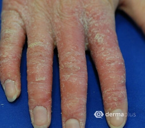 Haut schält sich fingerspitzen Fingerkuppen schälen