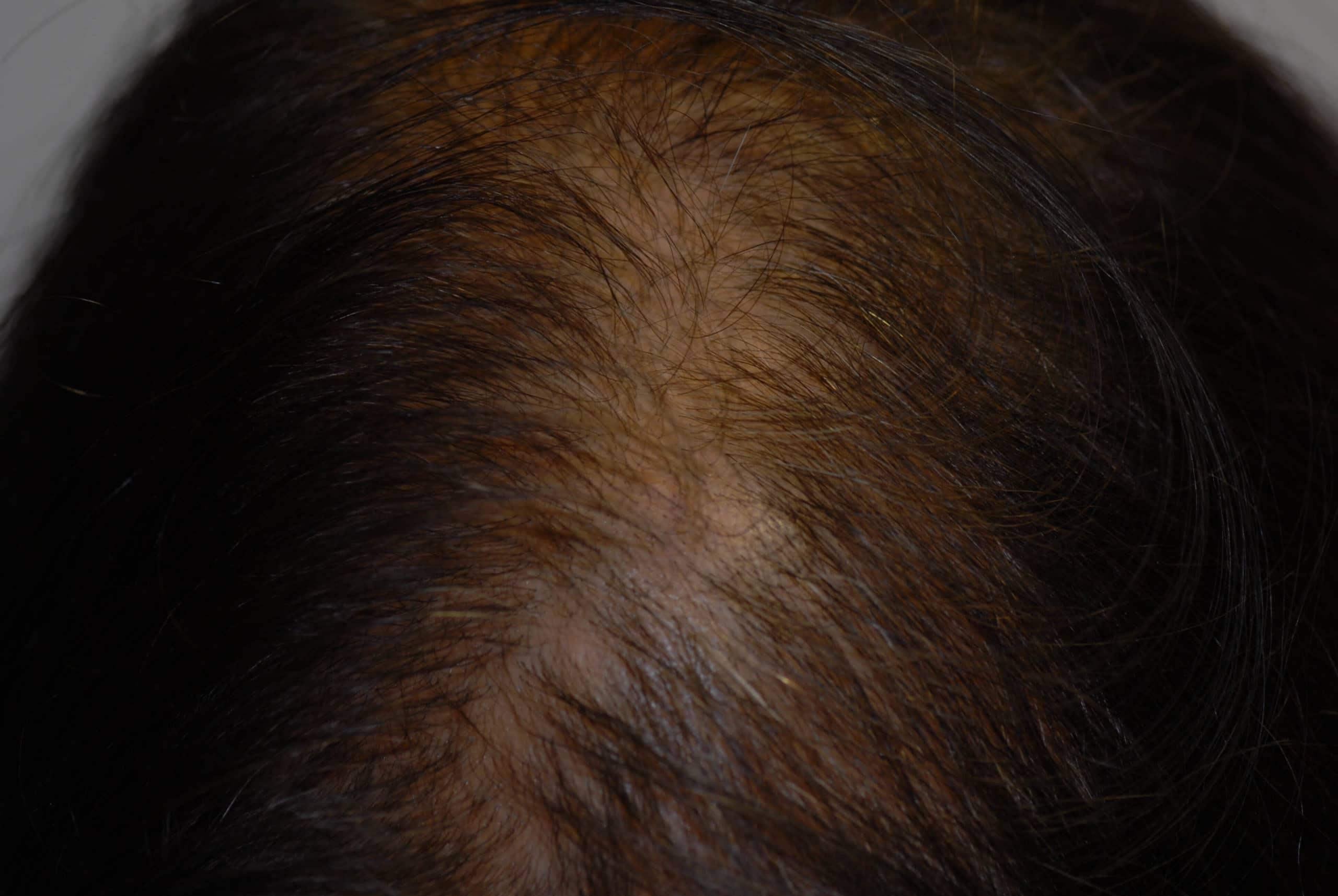 Haarausfall Androgenetische Alopezie Dermaplus