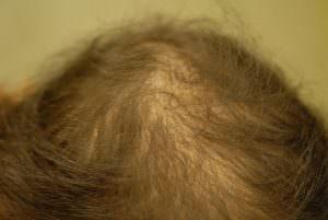 Androgenetische Alopezie Haarausfall
