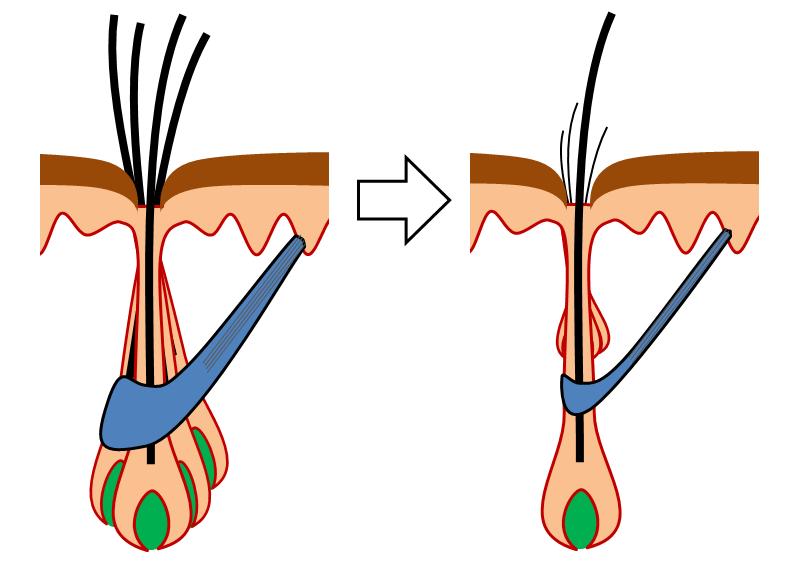 Haarbalgmuskels