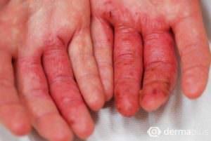 Handekzem atopisches ekzem neurodermitis