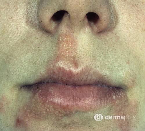 Lippenherpes herpes simplex labialis herpes labialis