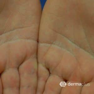 Hyperhidrose Hand hyperhidrosis hyperhidrose starkes schwitzen übermäßiges schwitzen