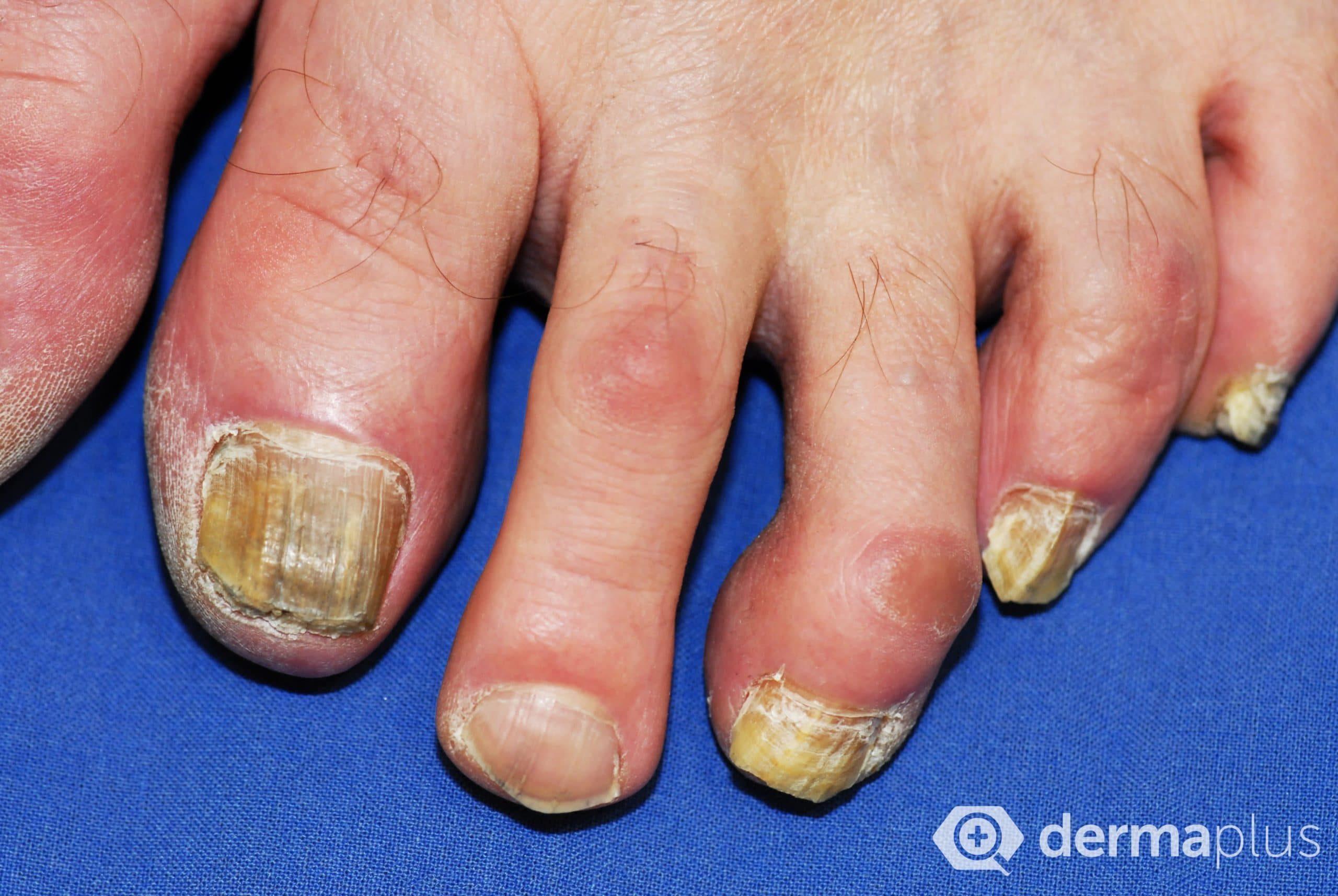 Die Salben von gribka auf den Fingern der Hände