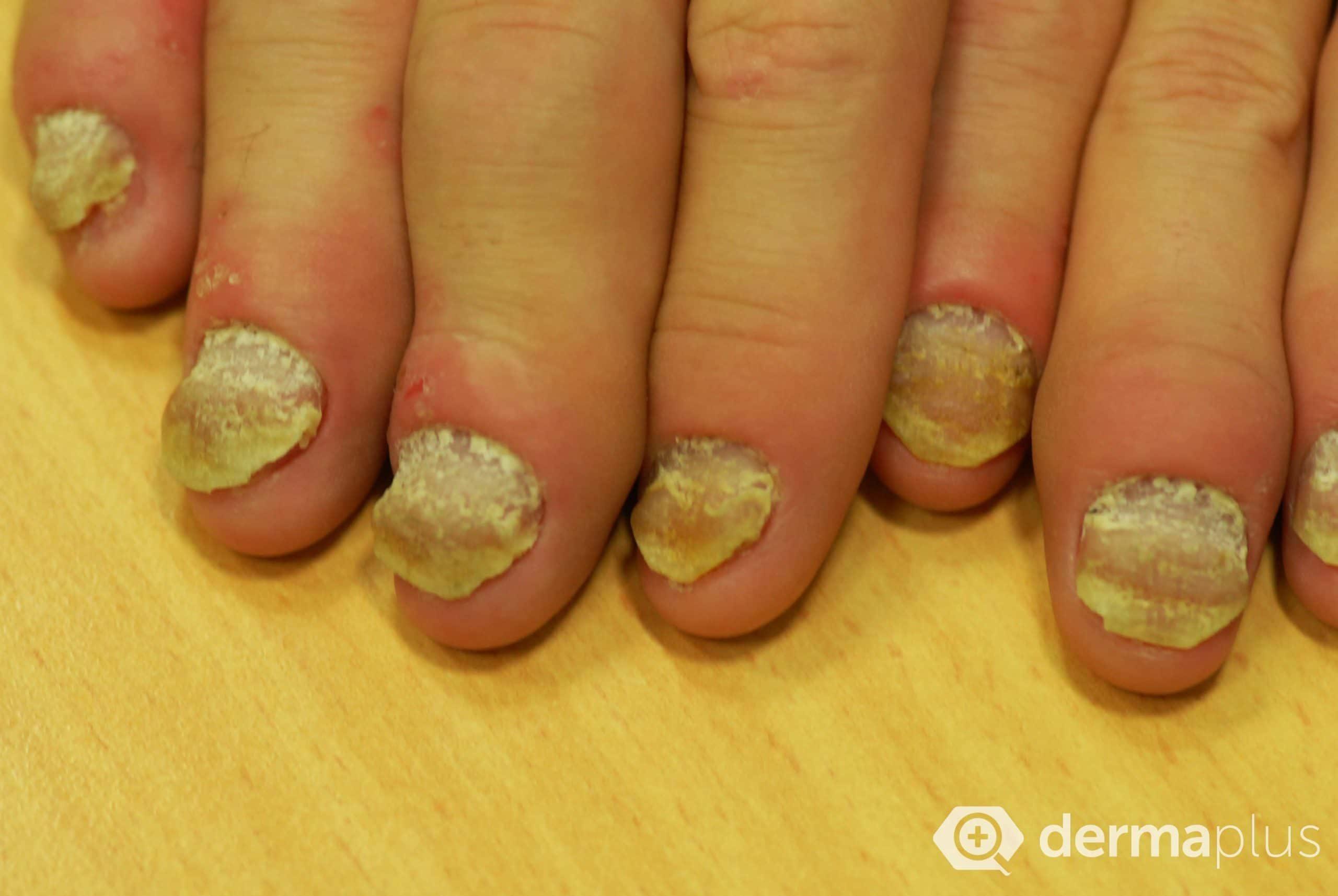 Nagelpilz (Onychomykose) - Ursachen und Therapie | derma.plus