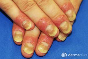 Psoriasis unguium schuppenflechte