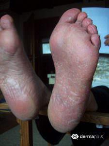 Fußpilz Tinea pedis