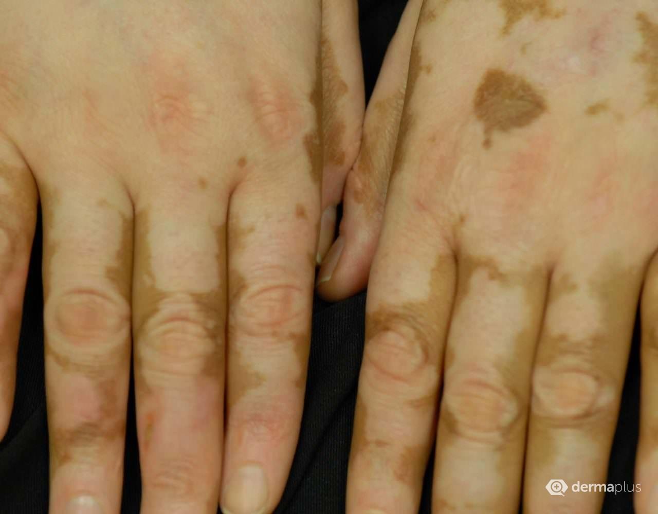 vitiligo finger