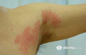 Herpes Zoster Oberarm Gürtelrose