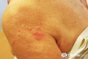 gürtelrose herpes zoster Schulter