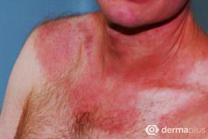 atopisches ekzem brust hals neurodermitis