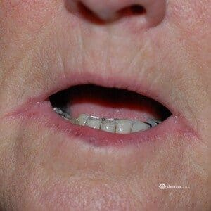 Angulus Infektion Mundwinkel angulus infectiosus mundwinkelrhagaden