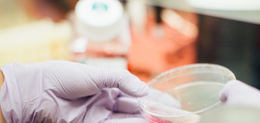 Antibiotikaresistenz Bakterien