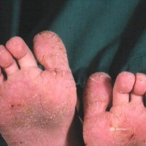 Atopischer Winterfuß dermatitis plantaris sicca