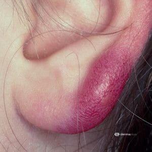 Zeckenbiss Borreliose Lyme-Borreliose Erythema migrans