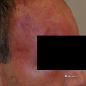 Wundrose Erysipel entzündliches Erythem Stirn