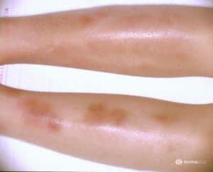 Knotenrose Erythema nodosum Bein