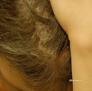 Kopfpsoriasis Psoriasis Capitis Ursachen Und Therapie Dermaplus