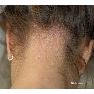 Nackenekzem Kopfläuse Kopflausbefall Pedikulose