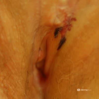 Herpes zoster im intimbereich