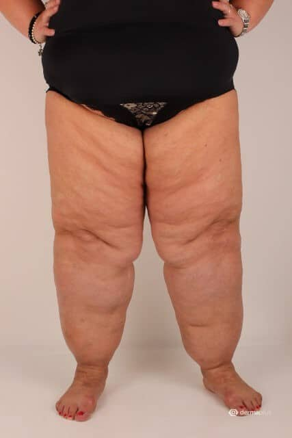 Lipödem Beine mit Adipositas