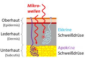 Hyperhidrose Mikrowellentherapie Achselschweiß