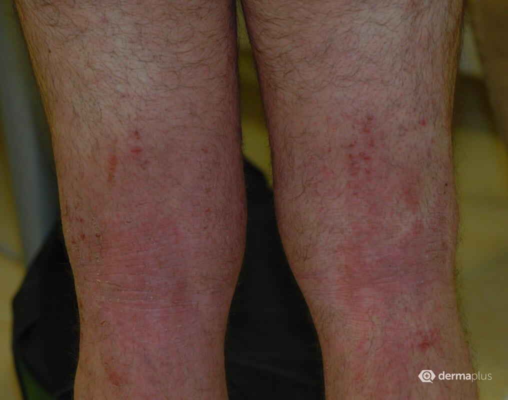Psoriasis Schuppenflechte Studie Dupilumab