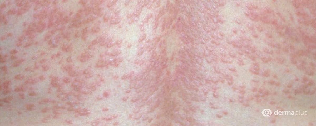 nicht infektiöse granulome