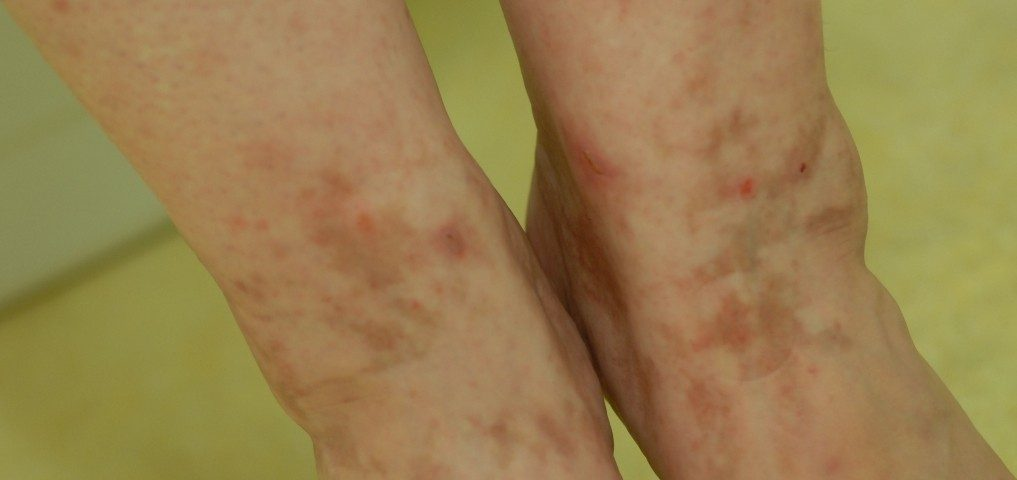 Morbus Schamberg Purpura pigmentosa progressiva Antioxidanzien Petechien