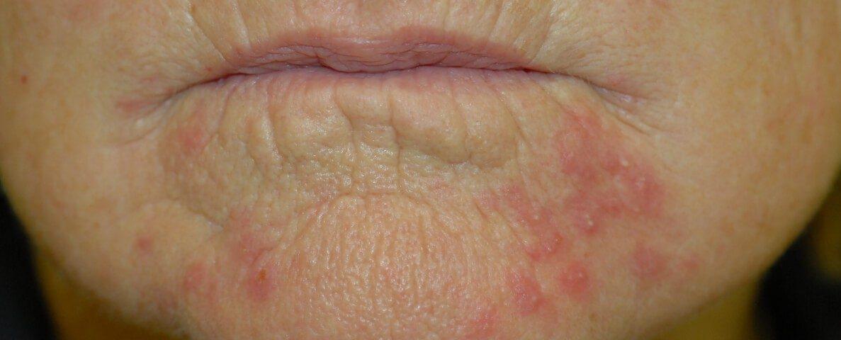 Periorale Dermatitis Mundrose Behandlung