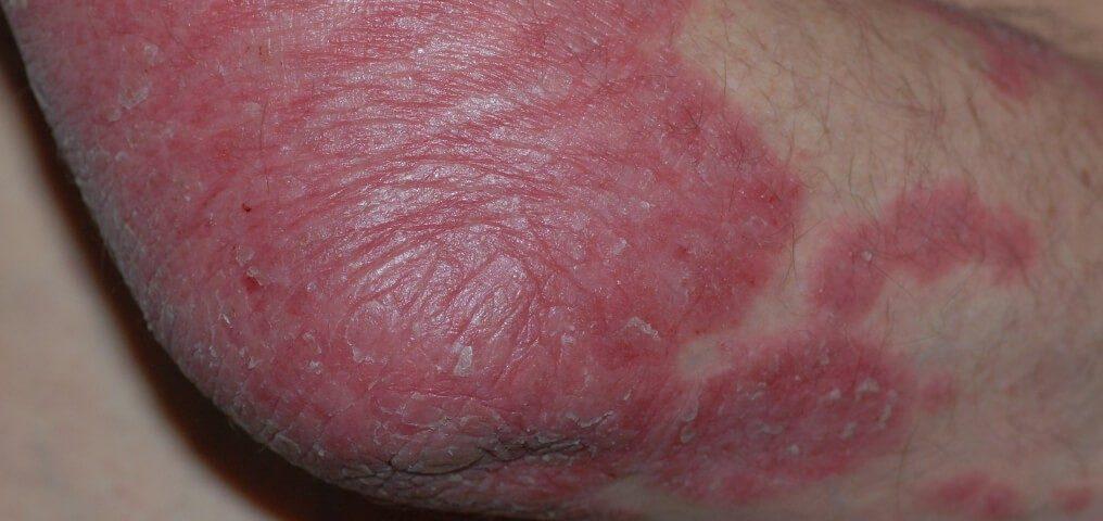 Psoriasis Schuppenflechte und Krebs
