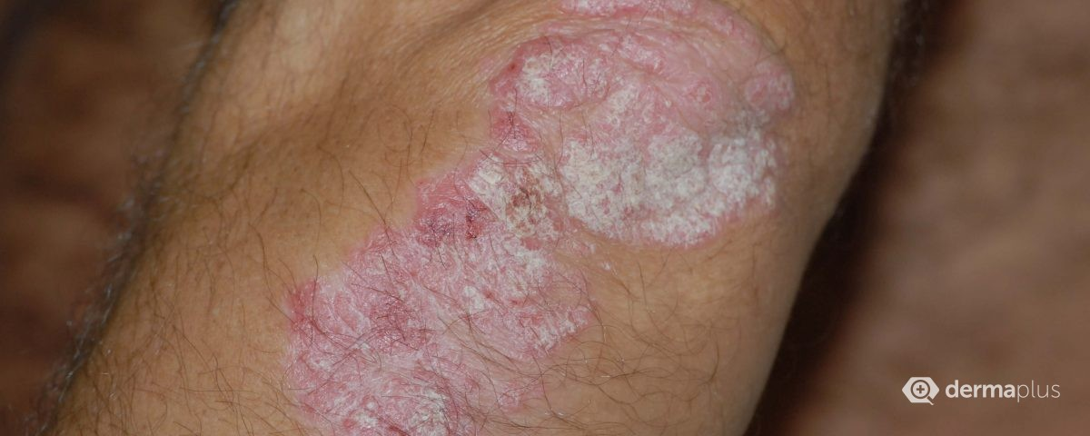 Psoriasis patientcompliance Schuppenflechte Behandlung