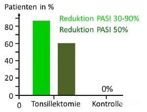 Schuppenflechte Psoriasis Gaumenmandeln Tonsillektomie