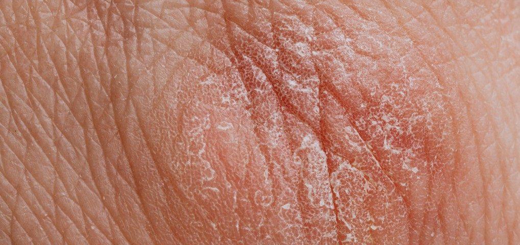 trockene Haut begünstigt Hautkrankheiten