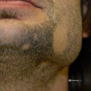 kreisrunder Haarausfall Alopecia areata Bart