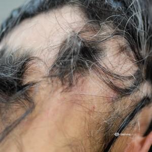 Einzigartige Kreisrunder Haarausfall Weiße Haare Wachsen