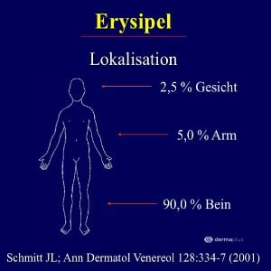 Wundrose Erysipel Verteilung