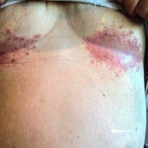 hyperhydrose brust hyperhidrosis hyperhidrose starkes schwitzen übermäßiges schwitzen